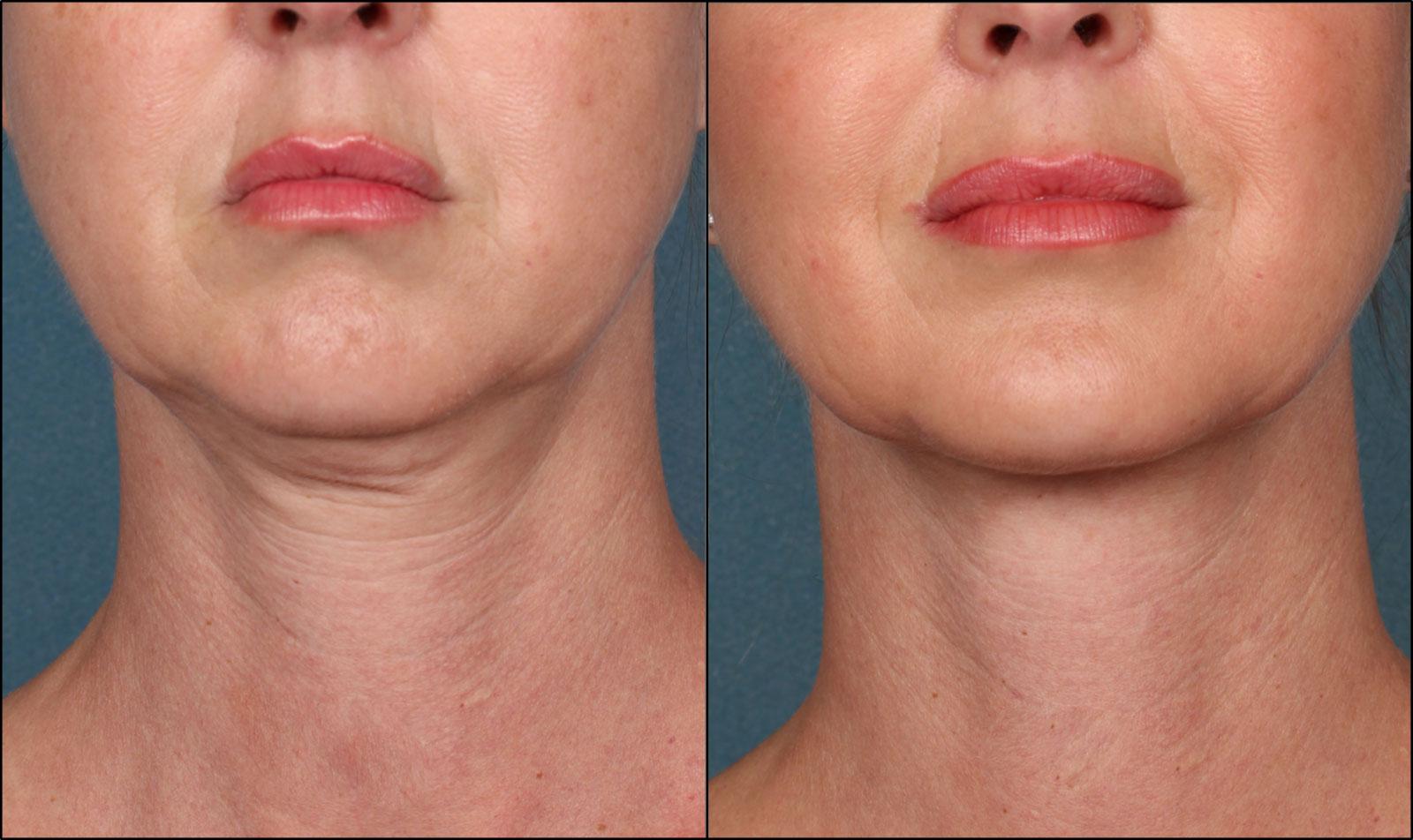Reafirma La Piel en Javea - Radiofrecuencia y tratamientos faciales HIFU