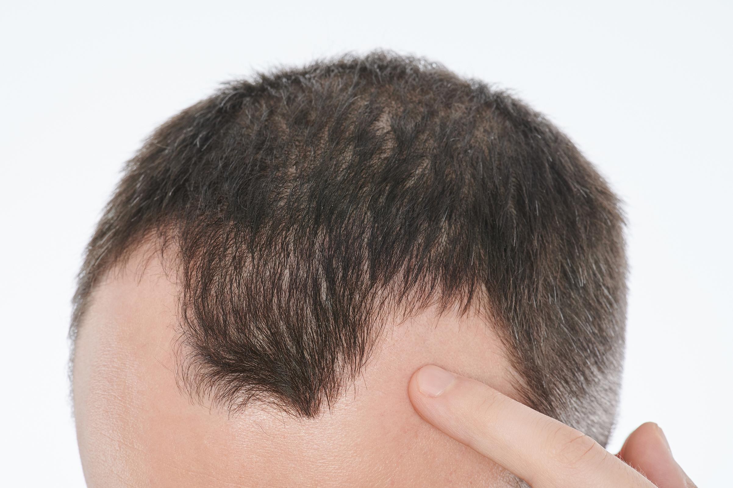 Tratamiento de pérdida de cabello en Javea